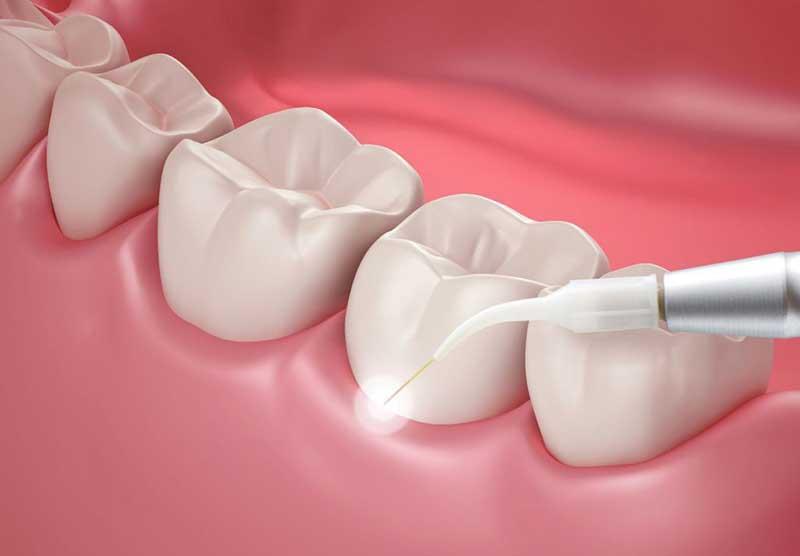 Laserbehandlung Zahnarzt